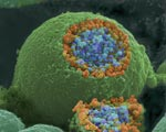 Colorized scanning electron microscope image of a nerve ending that has been broken open to reveal the synaptic vesicles (orange and blue) beneath the cell membrane.